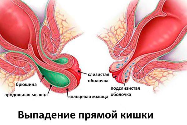 Терапия анальных трещин заключается снятии воспаления области ануса устранении спазма