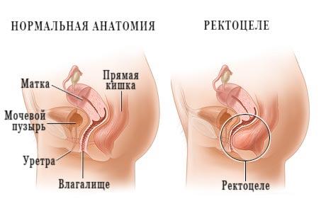Лечение выпадения прямой кишки через влагалище